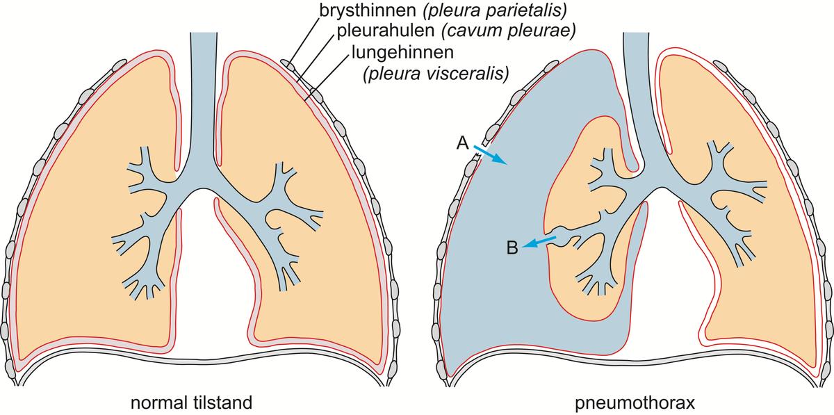 Standard 3 pneumothorax 1