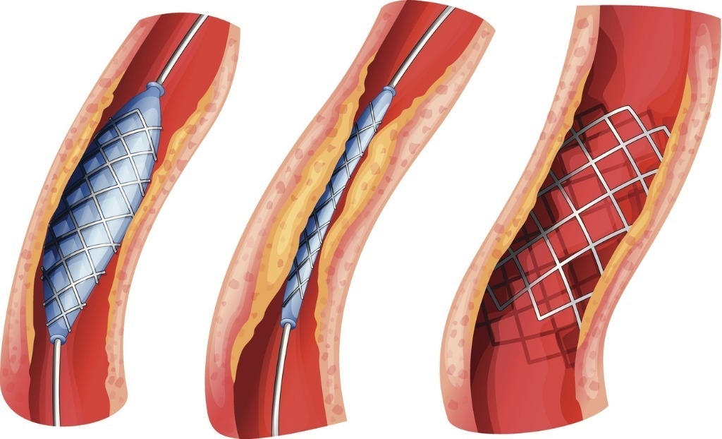 Standard stent used to open blocked artery vector id182086991