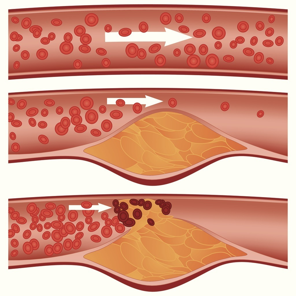 Standard atherosclerosis vector id153442838