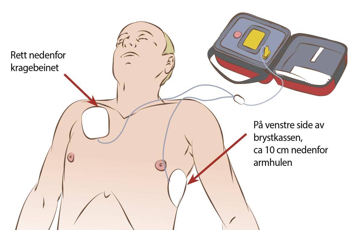 Standard elektrodeplassering