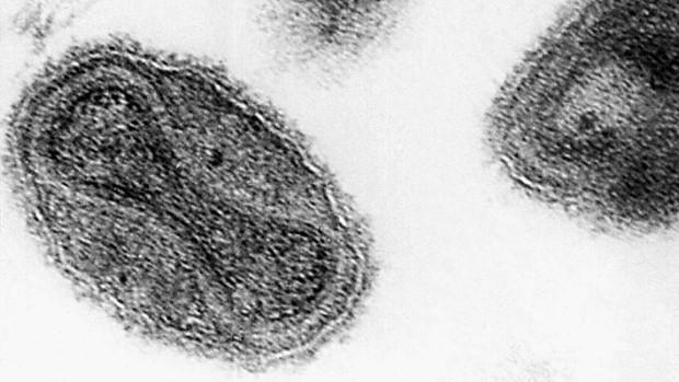 Standard variola